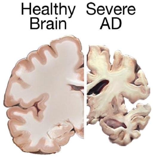 Healthy brain vs severe ad